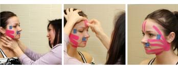 Подтянуть кожу лица после похудения помогут кинезиотейпы